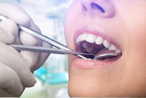 cure dentistiche
