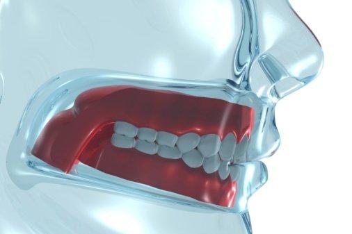 Dentures in Anderson, SC