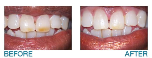 porcelain veneer dentist in Buffalo, NY