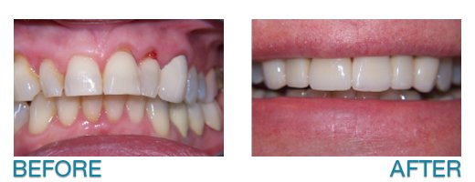 porcelain veneers in Buffalo, NY