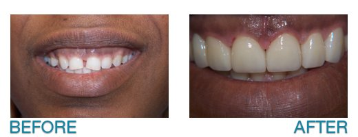 cosmetic dentistry in Buffalo, NY