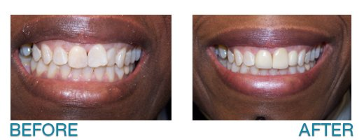 invisalign treatment - Buffalo, NY