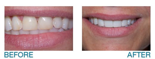 dental implants in Buffalo, NY