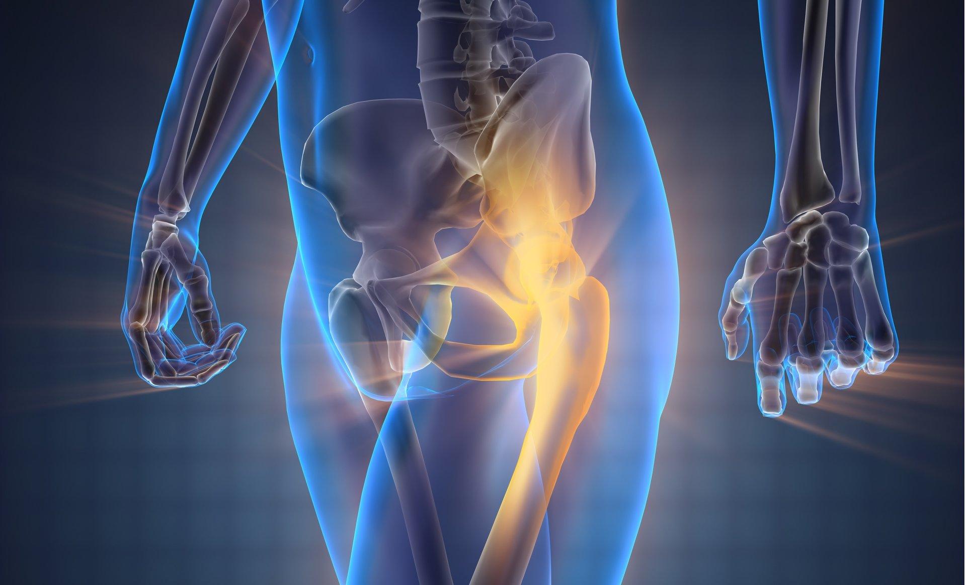 Hip Pain, osteopathy, sports massage, Luton, Leagrave