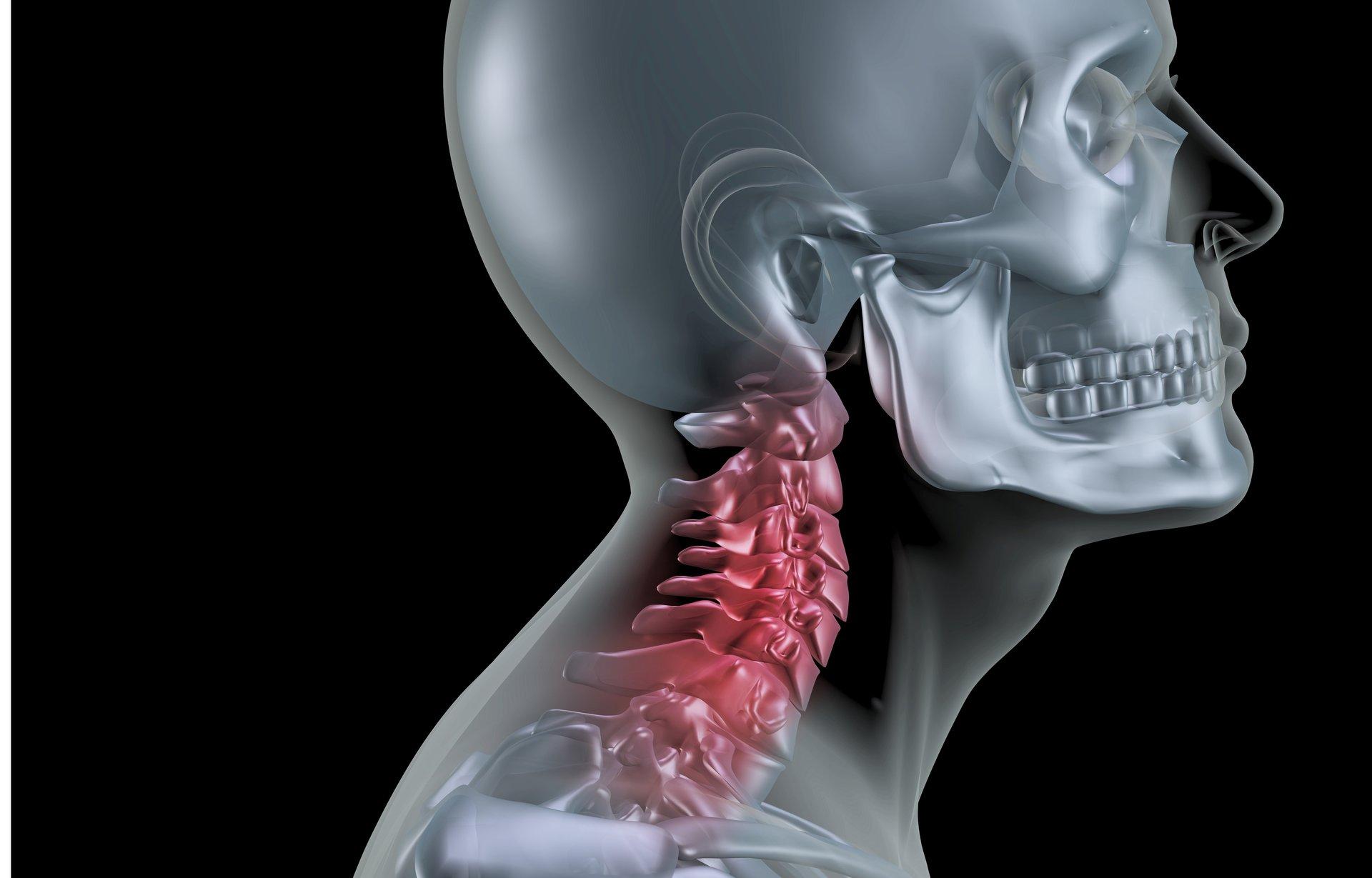 Neck pain treatment, osteopathy, sports massage, Luton, Leagrave