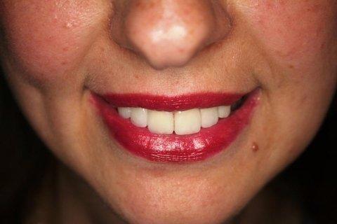 Faccette e Parodonto