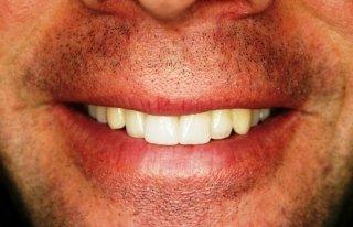 Faccette e Ortodonzia