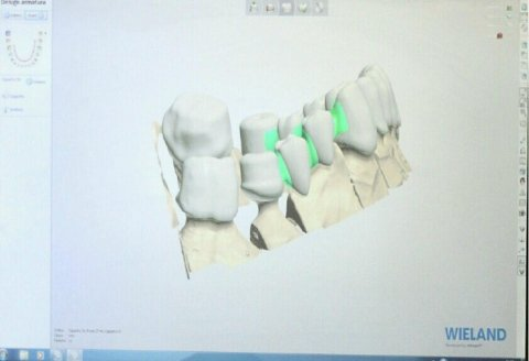 Protesi fissa computerizzata