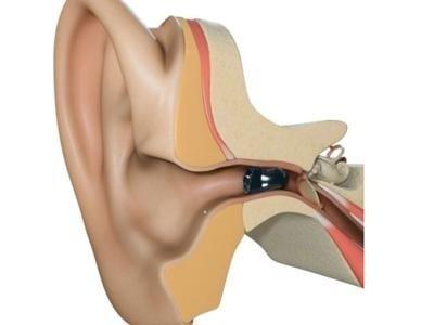 soluzioni tecnologiche per udito