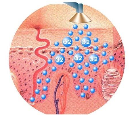 Trattamenti corpo con ossigeno