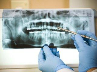 radiografia odontoiatrica