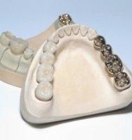 Attrezzatuta professionale per la cura dei denti