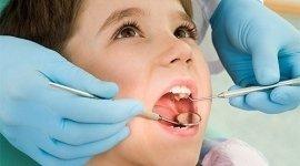 sbiancamento laser dei denti, pulizia dei denti, cura dei denti