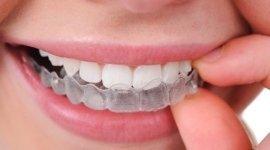 implantologia dentale, protesi dentarie, radiografie per denti