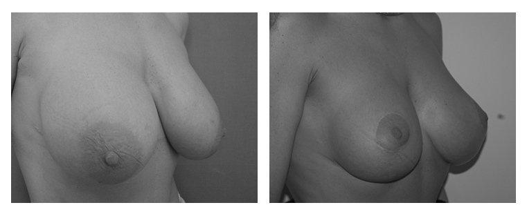 intervento di riduzione del seno caso 2
