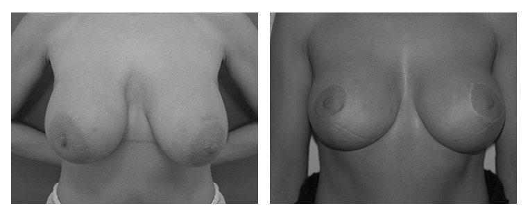 intervento di riduzione del seno 3