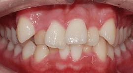 denti di un paziente completamente storti
