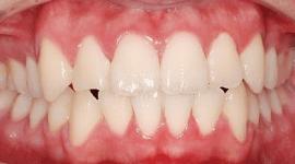 denti dritti dopo una operazione chirurgica