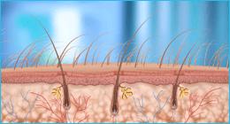 fototerapia per psoriasi