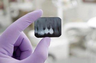 apparecchi dentistici