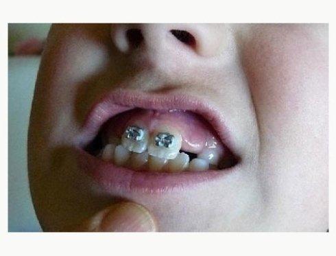 apparecchio dentale bambini