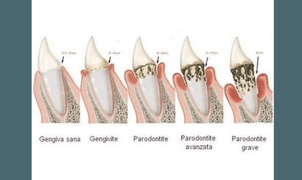 Evoluzione Parodontite