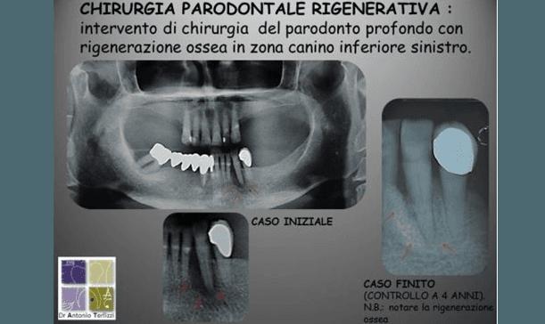 Chirurgia parodontale rigenerativa