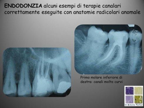 Casi trattati di endodonzia