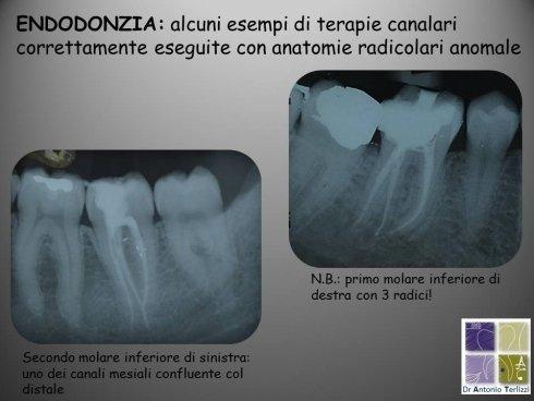 Casi di endodonzia