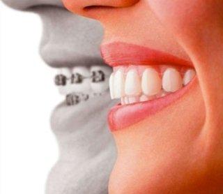 appearecchio per i denti