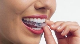 mascherina dentale