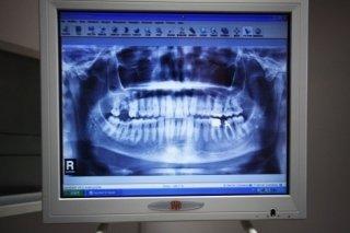 esami arcata dentale