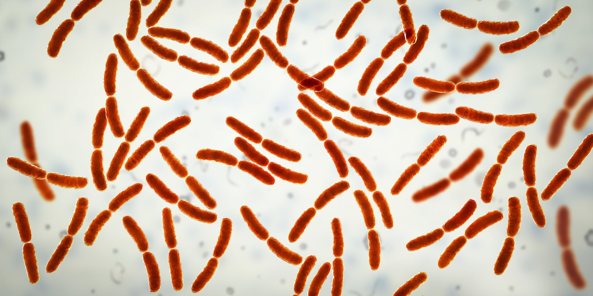 Small Intestinal Bacterial Overgrowth: The Signs and Symptoms of SIBO
