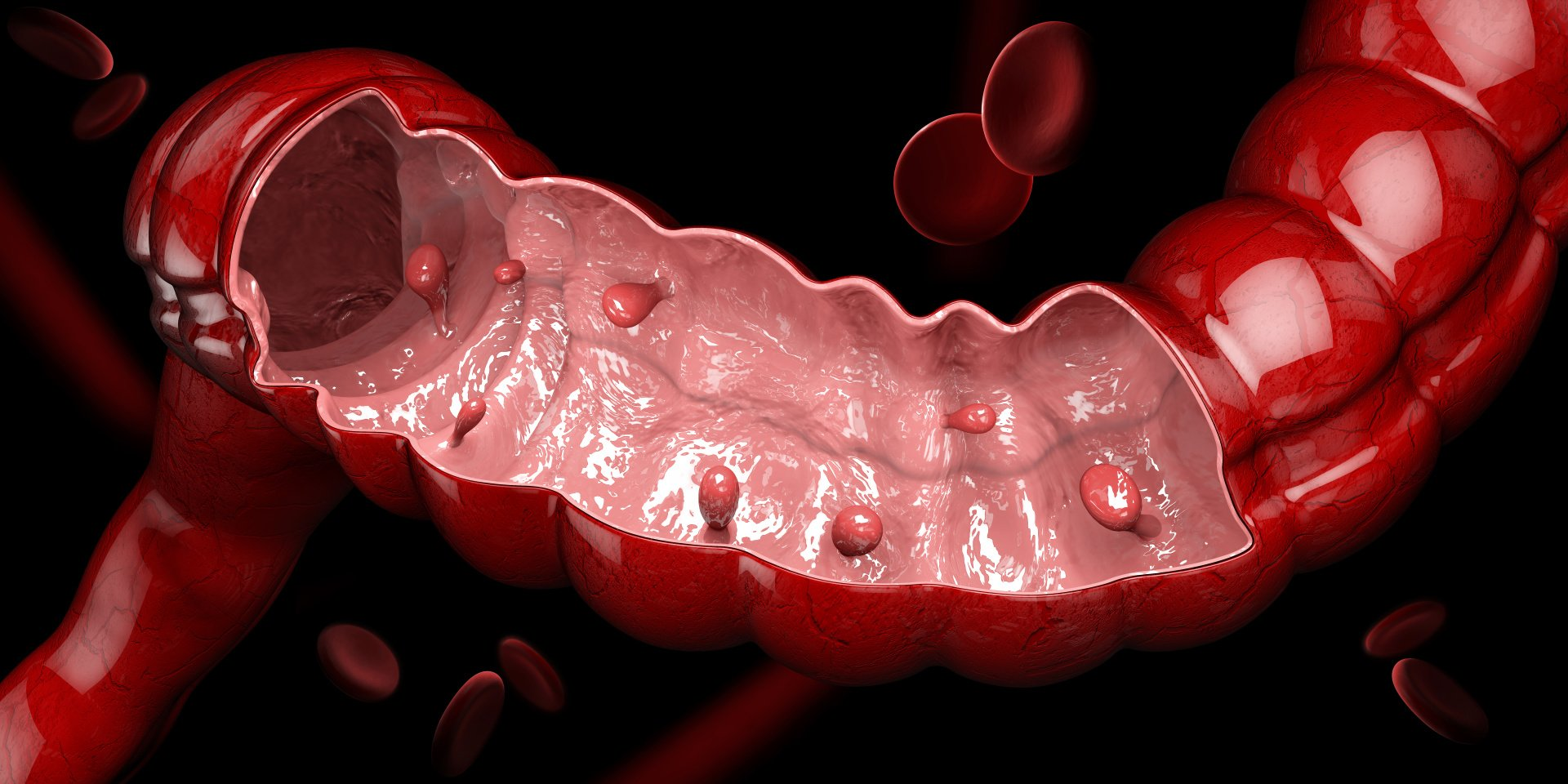 Symptoms, Causes, and Treatments for Colon Polyps