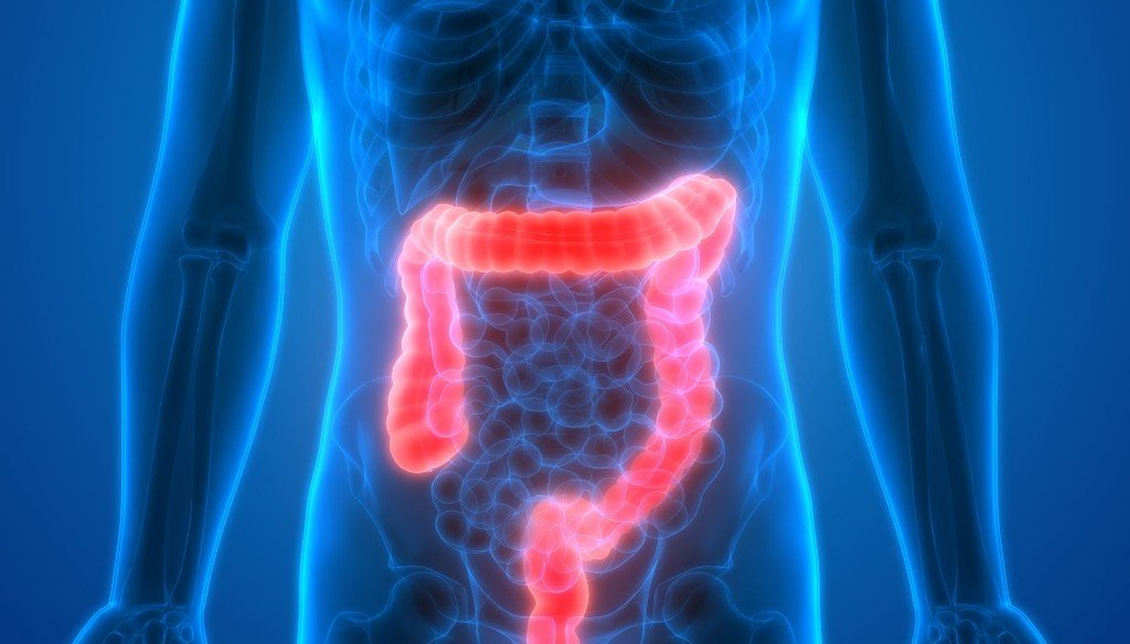 Is Cologuard As Effective As A Colonoscopy