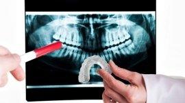 realizzazione placchette dentali, placchette anti digrignamento, placchette per la notte