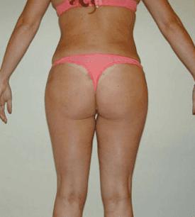 liposuzione dopo dietro 2
