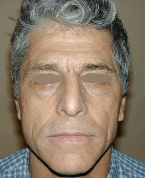 blefaroplastica prima