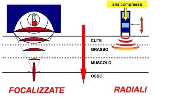 onde d urto radiali e focali