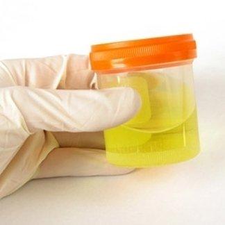 esame urine, acido ippurico