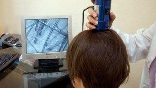 Esame del capello