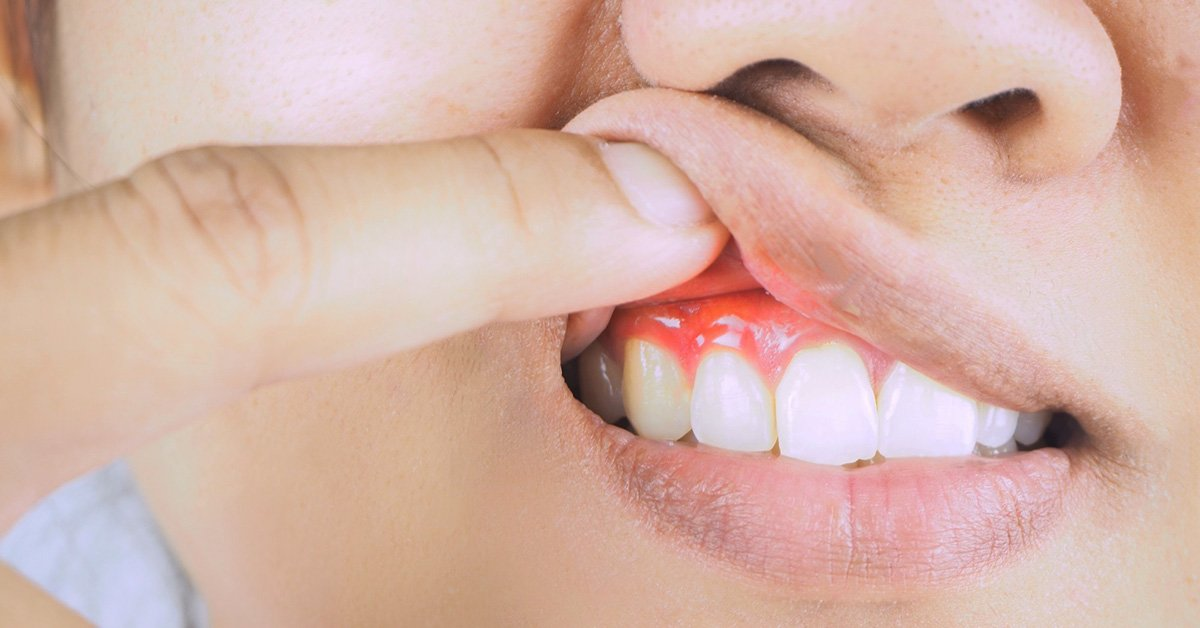 Be Aware of Gum Diseases