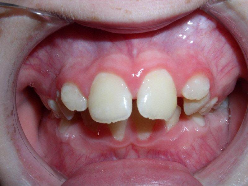 maxillary protrusion