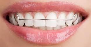 retainer smile