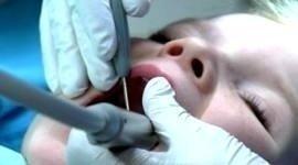protesi mobili, ambulatori ortodonzia, prevenzione
