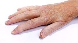 smagliature, epilazione definitiva, trattamento della couperose