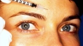 dermatologia estetica, peeling, filler