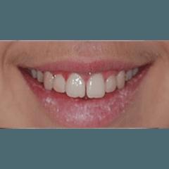 Trattamento ortodontico dopo