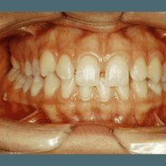 Trattamento ortodontico prima