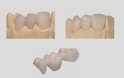 metal free dental restoration